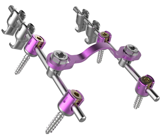 HyperLOX Posterior Cervical Full Construct