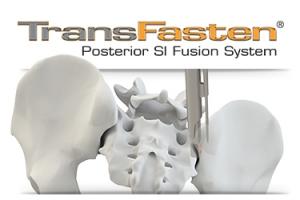TransFasten Posterior SI Fusion System