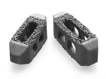 Captiva Spine TirboLOX-L Titanium Lumbar Cage TLIF PLIF